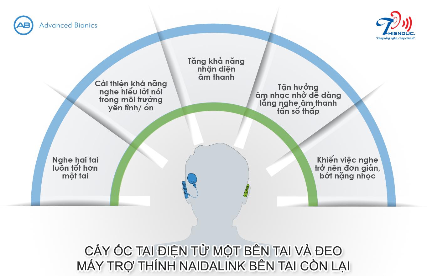 Giải pháp nghe đồng bộ 2 tai tối ưu cho bệnh nhân cấy ghép ốc tai điện tử 1 bên.